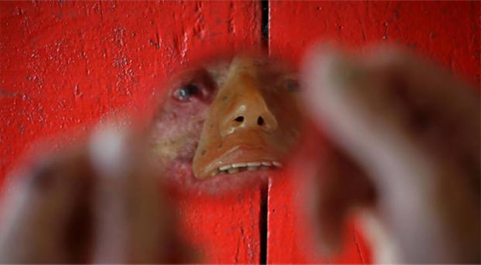 La rara enfermedad que derrite la piel de los habitantes de un poblado brasileño