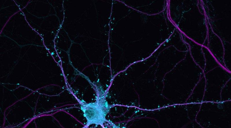 Lo sabías? Diariamente nacen 1.400 nuevas neuronas en el cerebro hasta que vamos enjeveciendo