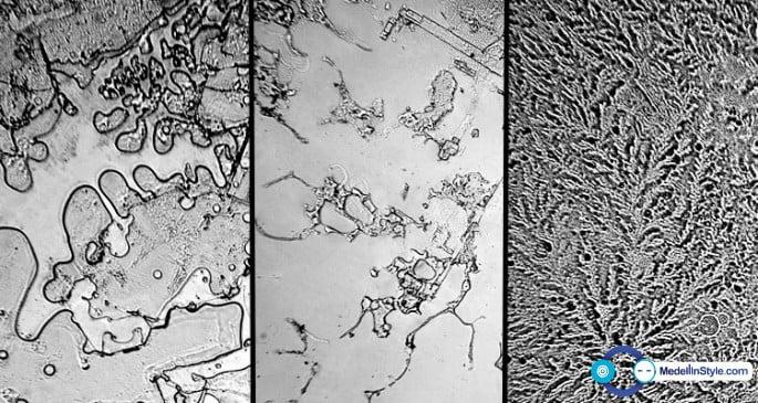 Fractales: Mirar los tipos de lágrimas a través de un microscopio da resultados INCREÍBLES