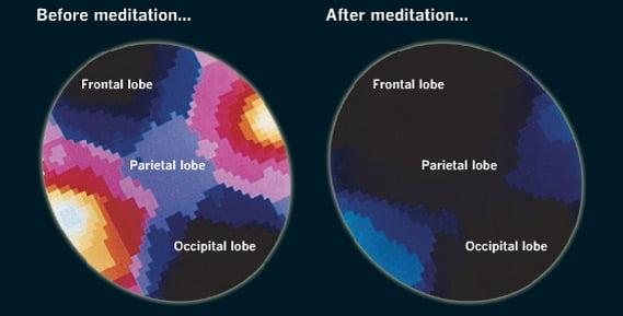 Cómo la meditación modifica tu Cerebro ?