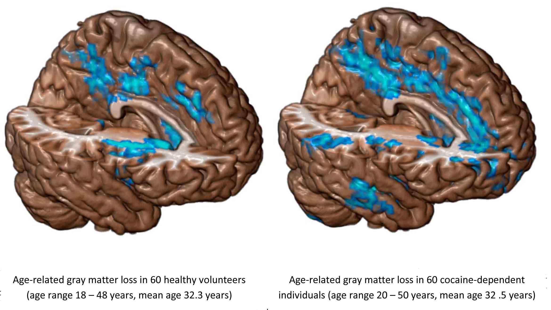 Una sola dosis de cocaína es suficiente para alterar el cerebro
